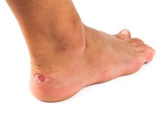 Blasen an den Füßen – die unangenehmen Folgen von zu viel Reibung